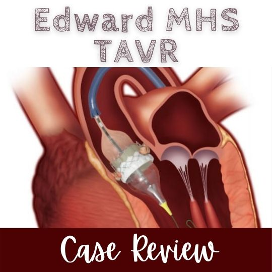 2021 EDW MHS TAVR Case Review (RSS) Banner